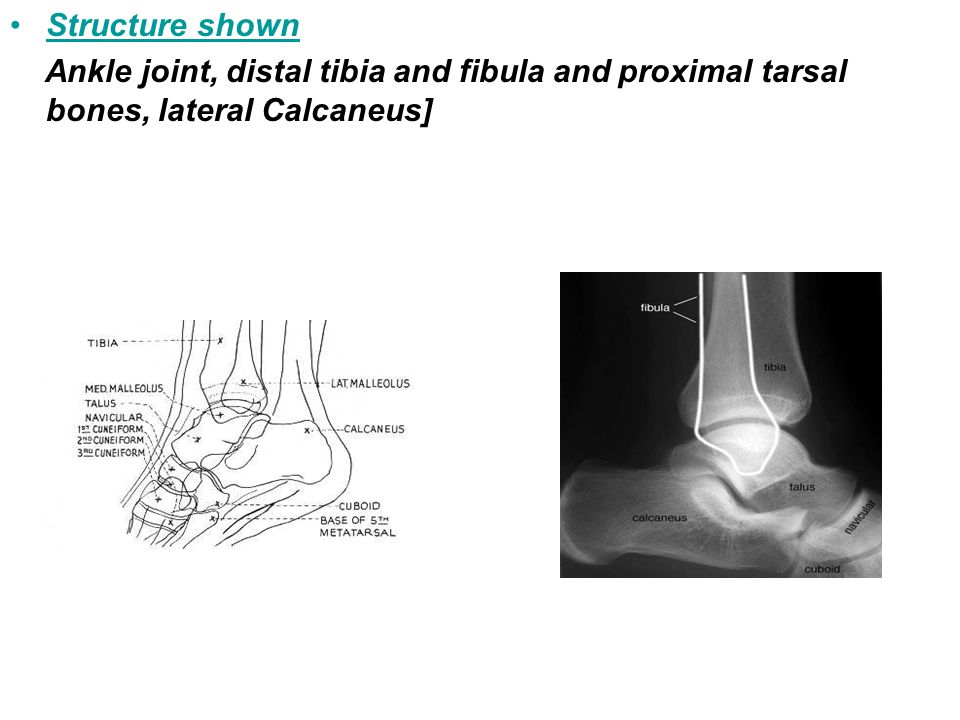Structure shown Ankle joint, distal tibia and fibula and proximal tarsal bones, lateral Calcaneus]